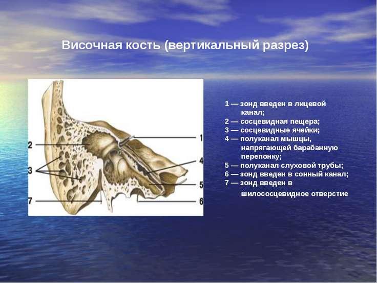 1 — зонд введен в лицевой канал; 2 — сосцевидная пещера; 3 — сосцевидные ячей...