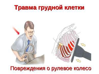 Повреждения о рулевое колесо Травма грудной клетки