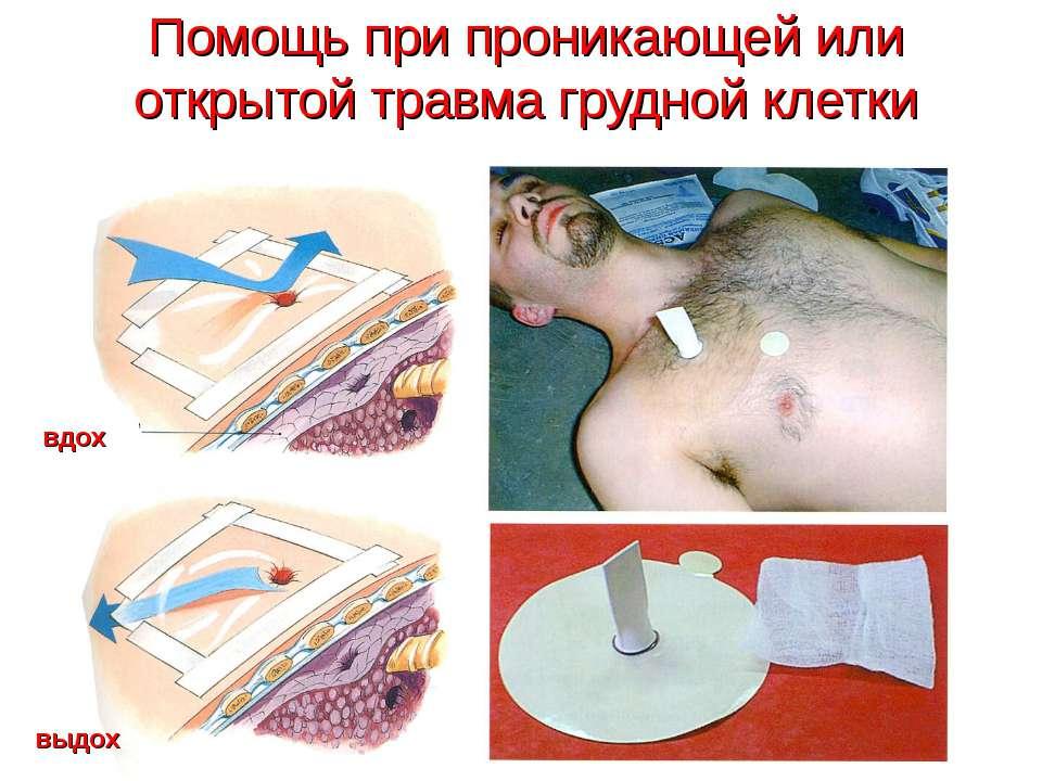 Помощь при проникающей или открытой травма грудной клетки вдох выдох
