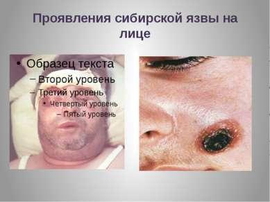 Проявления сибирской язвы на лице