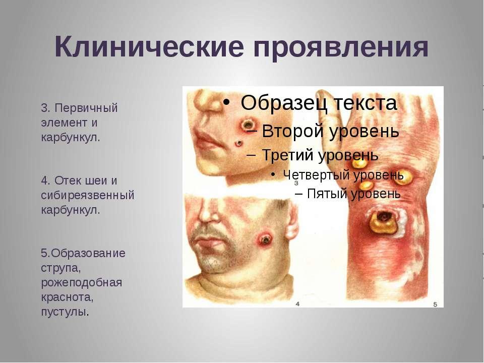 Клинические проявления 3. Первичный элемент и карбункул. 4. Отек шеи и сибире...