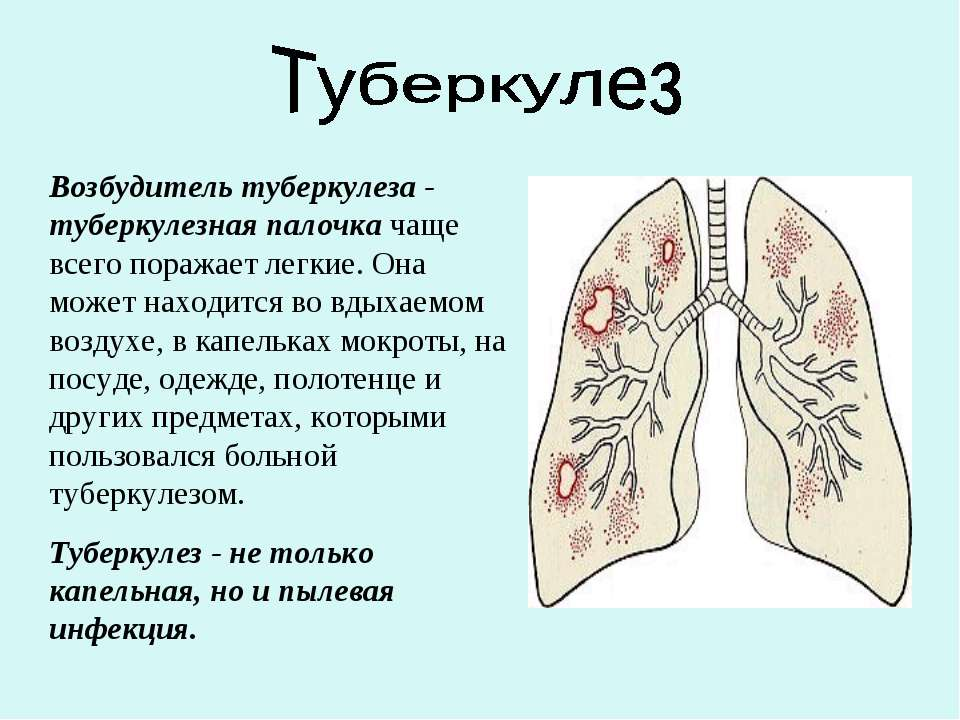 Возбудитель туберкулеза - туберкулезная палочка чаще всего поражает легкие. О...