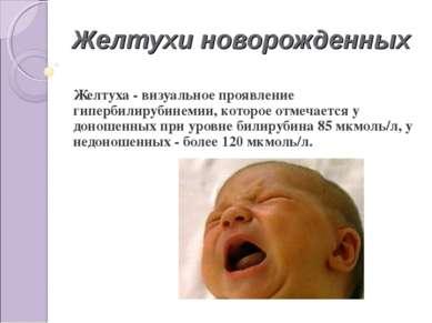 Желтухи новорожденных Желтуха - визуальное проявление гипербилирубинемии, кот...