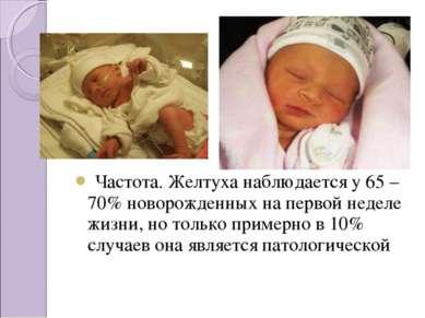 Частота. Желтуха наблюдается у 65 – 70% новорожденных на первой неделе жизни...