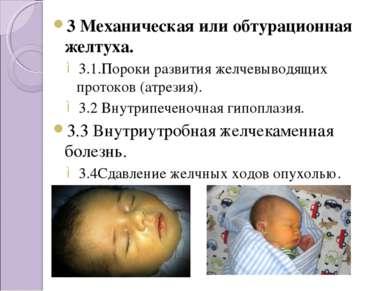 3 Механическая или обтурационная желтуха. 3.1.Пороки развития желчевыводящих ...