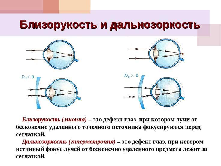 Близорукость и дальнозоркость Близорукость (миопия) – это дефект глаз, при ко...