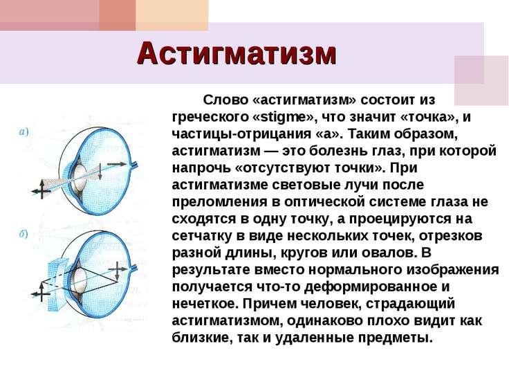 Астигматизм Слово «астигматизм» состоит из греческого «stigme», что значит «т...