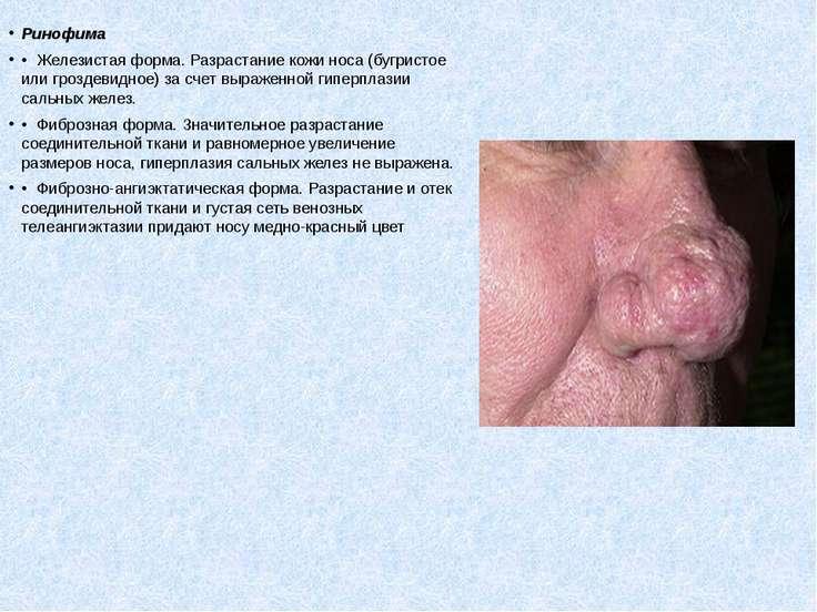 Ринофима • Железистая форма. Разрастание кожи носа (бугристое или гроздевидн...
