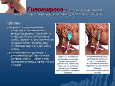 Гипотиреоз – это заболевание вызвано снижением или полным выпадением функций ...