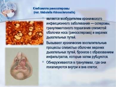 Клебсиелла риносклеромы (лат. klebsiella rhinoscleromatis) является возбудите...