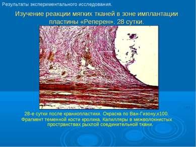 Изучение реакции мягких тканей в зоне имплантации пластины «Реперен». 28 сутк...