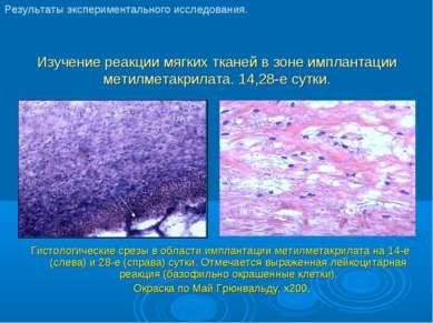 Изучение реакции мягких тканей в зоне имплантации метилметакрилата. 14,28-е с...