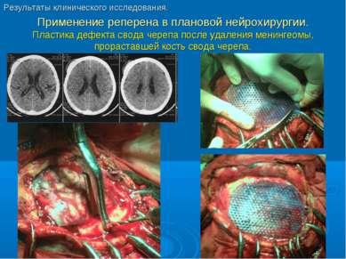 Применение реперена в плановой нейрохирургии. Пластика дефекта свода черепа п...
