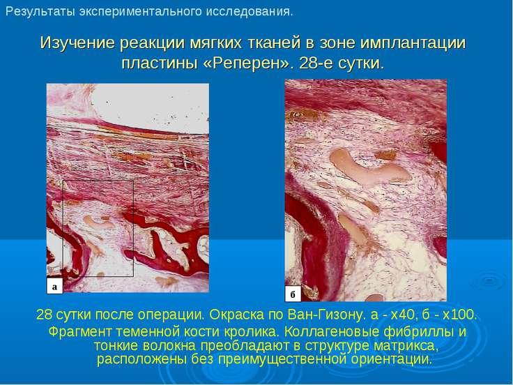 Изучение реакции мягких тканей в зоне имплантации пластины «Реперен». 28-е су...