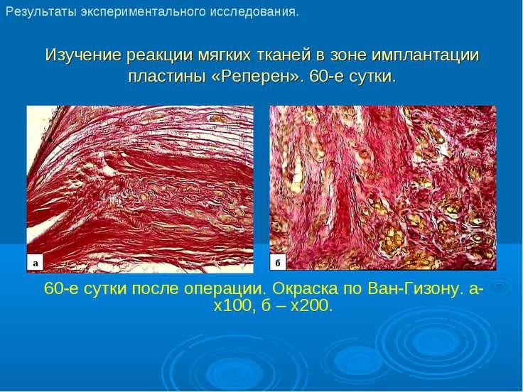 Изучение реакции мягких тканей в зоне имплантации пластины «Реперен». 60-е су...