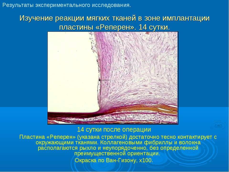 Изучение реакции мягких тканей в зоне имплантации пластины «Реперен». 14 сутк...
