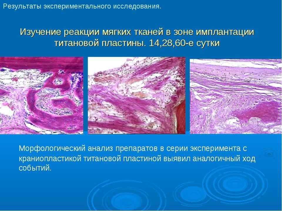 Изучение реакции мягких тканей в зоне имплантации титановой пластины. 14,28,6...