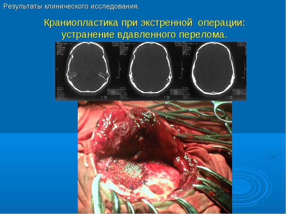 Краниопластика при экстренной операции: устранение вдавленного перелома. Резу...