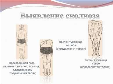 Произвольная поза. (асимметрия плеч, лопаток, Сглаженность треугольника талии...