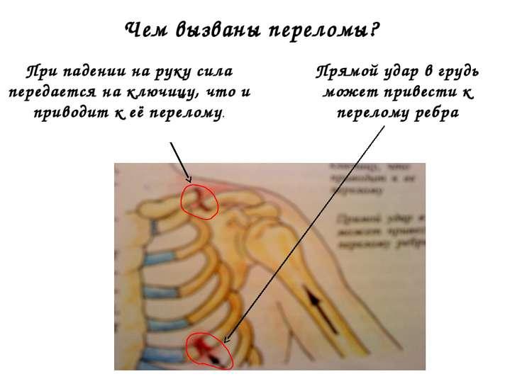 Чем вызваны переломы? При падении на руку сила передается на ключицу, что и п...