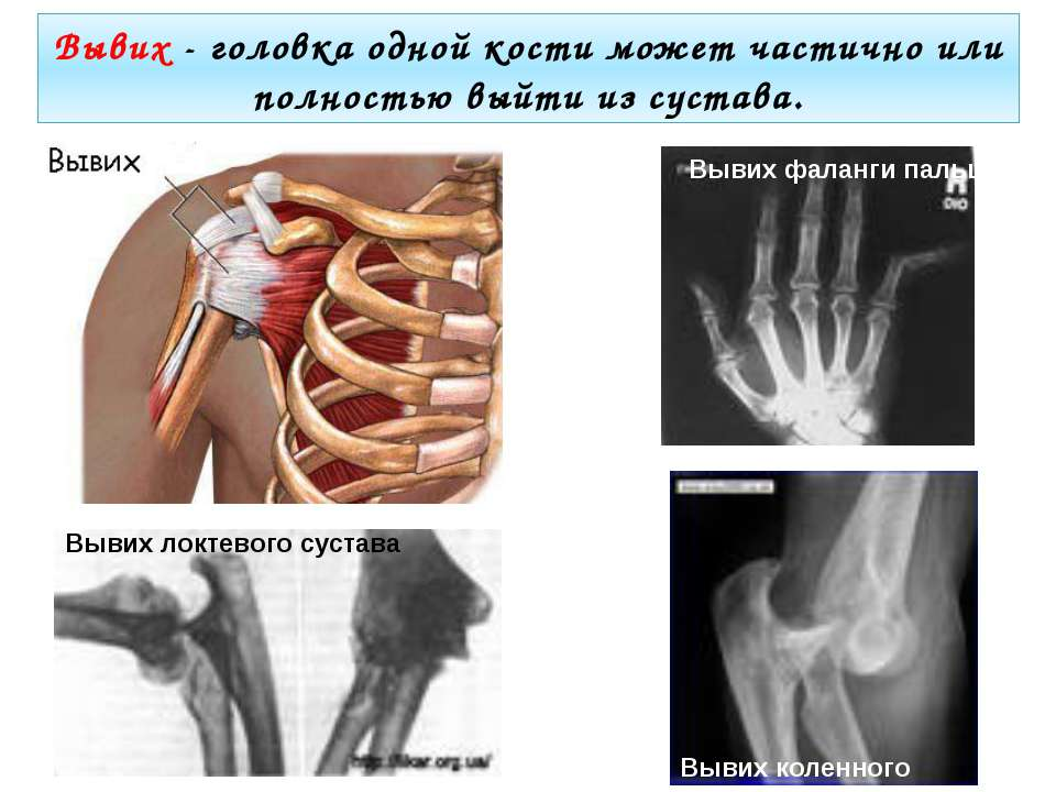 Вывих - головка одной кости может частично или полностью выйти из сустава. Вы...