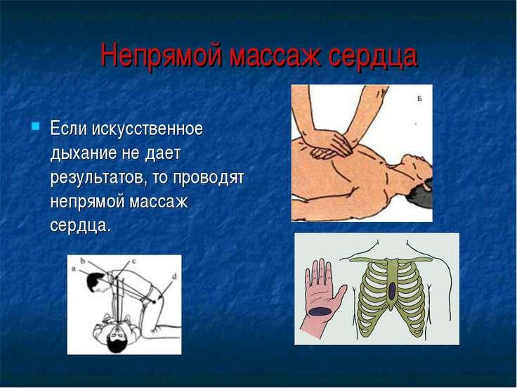 Непрямой массаж сердца Если искусственное дыхание не дает результатов, то про...
