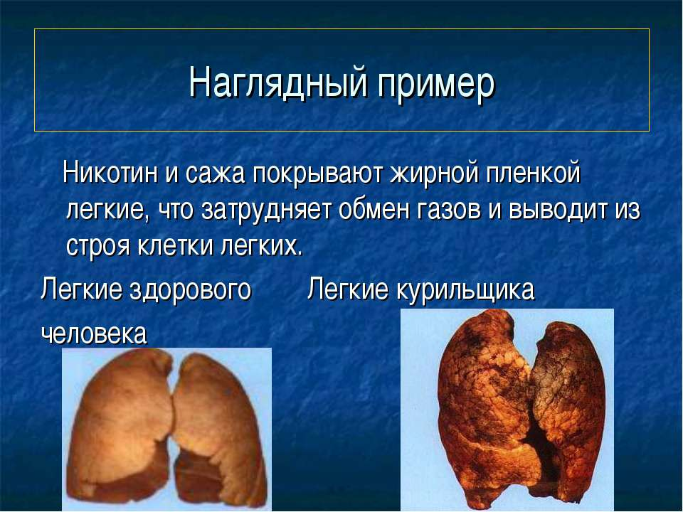 Наглядный пример Никотин и сажа покрывают жирной пленкой легкие, что затрудня...