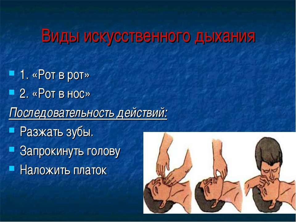 Виды искусственного дыхания 1. «Рот в рот» 2. «Рот в нос» Последовательность ...