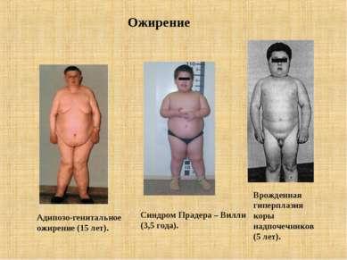 Ожирение Адипозо-генитальное ожирение (15 лет). Синдром Прадера – Вилли (3,5 ...
