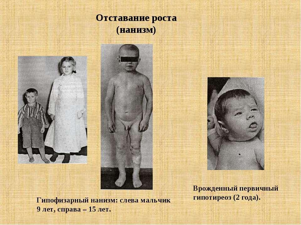 Отставание роста (нанизм) Гипофизарный нанизм: слева мальчик 9 лет, справа – ...