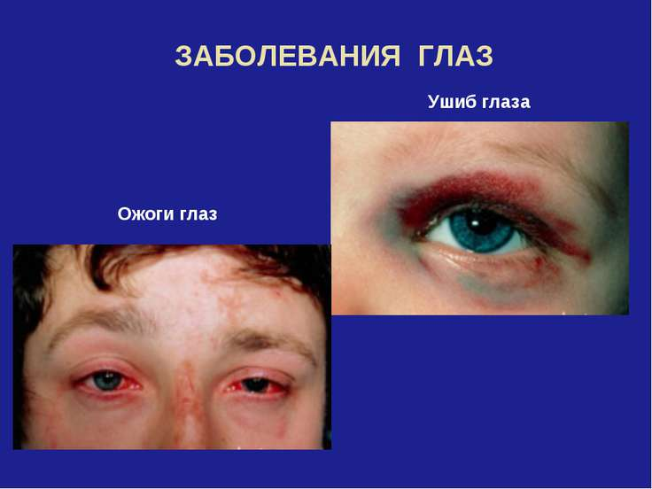 ЗАБОЛЕВАНИЯ ГЛАЗ Ушиб глаза Ожоги глаз