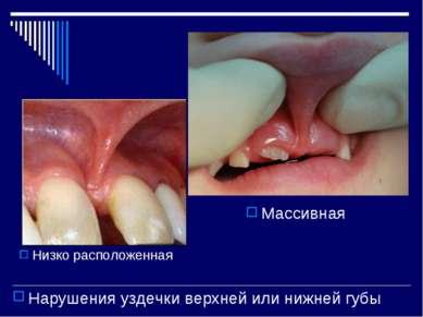 Нарушения уздечки верхней или нижней губы Низко расположенная Массивная