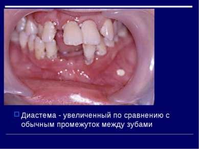 Диастема - увеличенный по сравнению с обычным промежуток между зубами