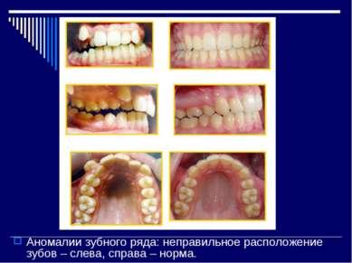Аномалии зубного ряда: неправильное расположение зубов – слева, справа – норма.