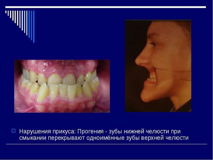 Нарушения прикуса: Прогения - зубы нижней челюсти при смыкании перекрывают од...