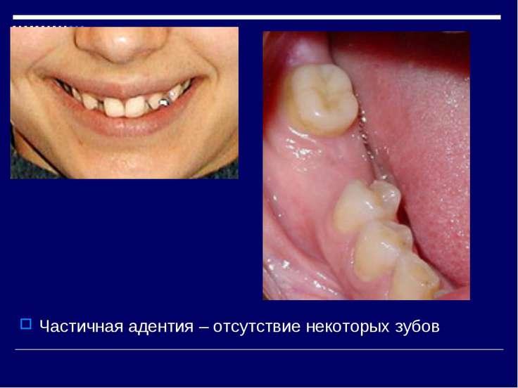Частичная адентия – отсутствие некоторых зубов