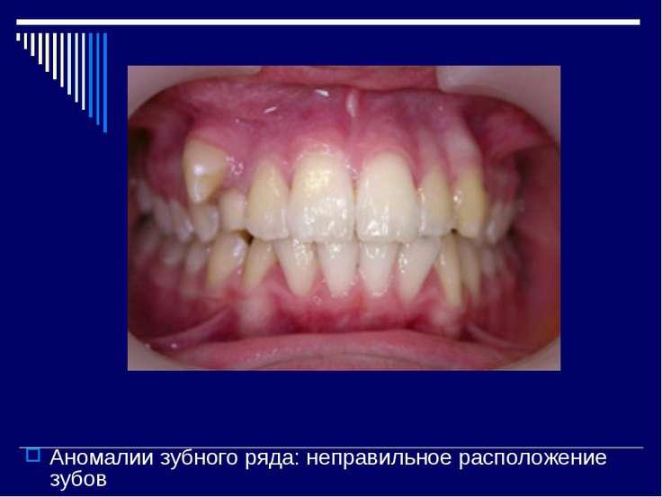 Аномалии зубного ряда: неправильное расположение зубов