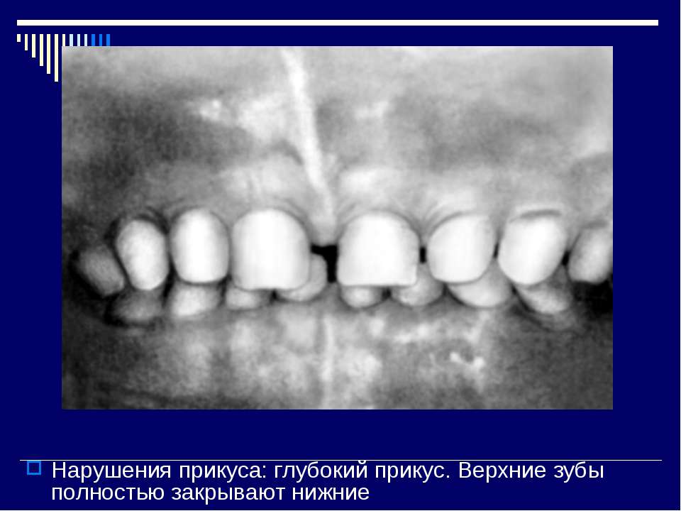 Нарушения прикуса: глубокий прикус. Верхние зубы полностью закрывают нижние