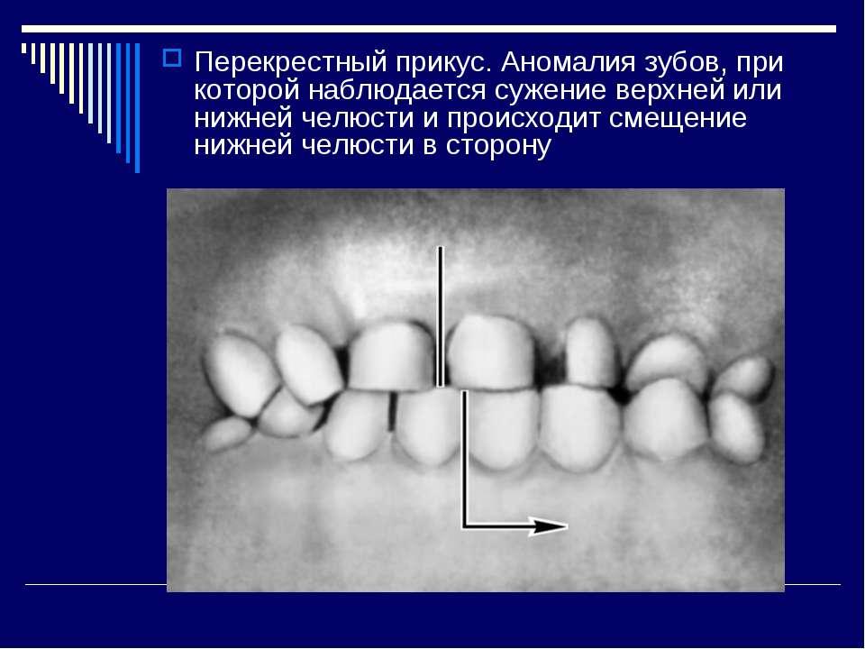 Перекрестный прикус. Аномалия зубов, при которой наблюдается сужение верхней ...