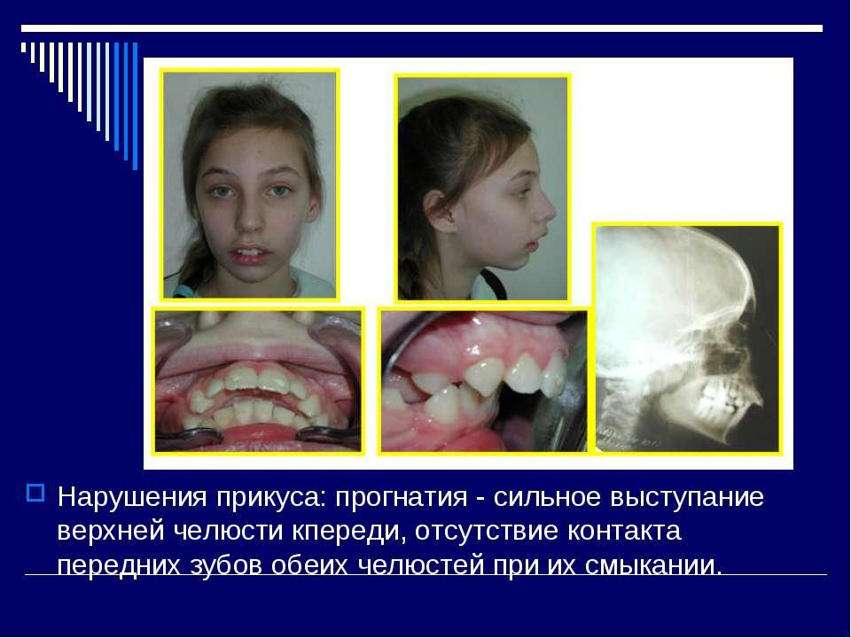 Нарушения прикуса: прогнатия - сильное выступание верхней челюсти кпереди, от...