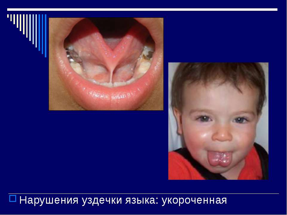 Нарушения уздечки языка: укороченная