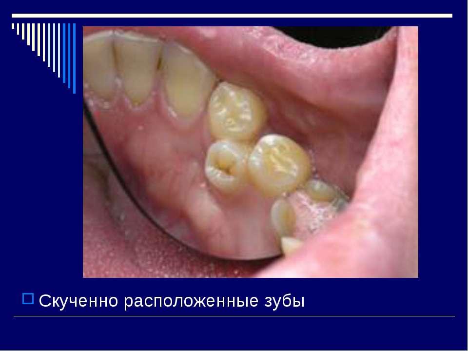 Скученно расположенные зубы