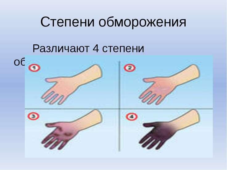 Степени обморожения Различают 4 степени обморожения.