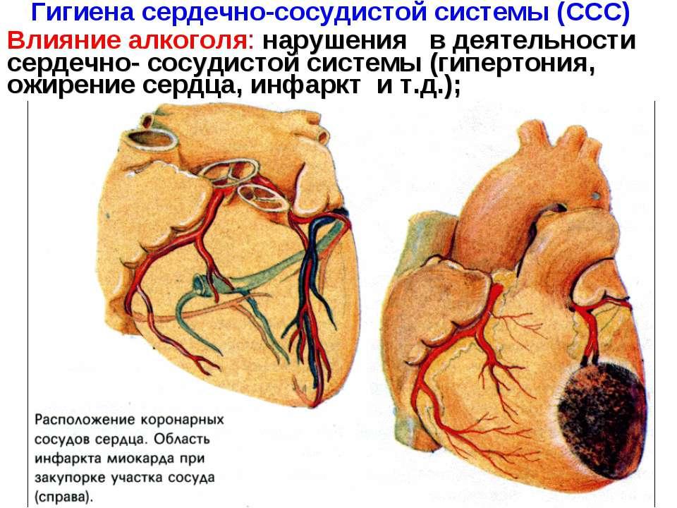 Гигиена сердечно-сосудистой системы (ССС) Влияние алкоголя: нарушения в деяте...