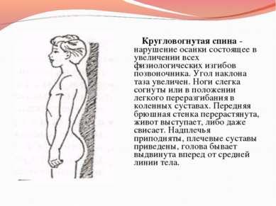 Кругловогнутая спина - нарушение осанки состоящее в увеличении всех физиологи...