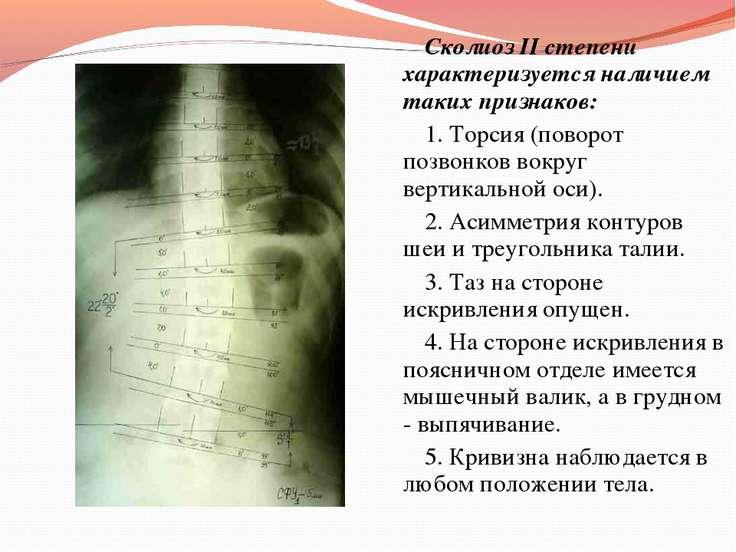 Сколиоз II степени характеризуется наличием таких признаков: 1. Торсия (повор...