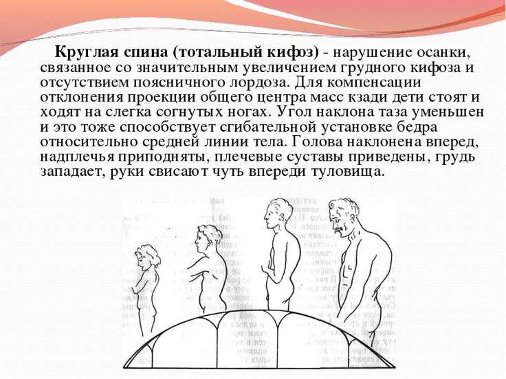 Круглая спина (тотальный кифоз) - нарушение осанки, связанное со значительным...
