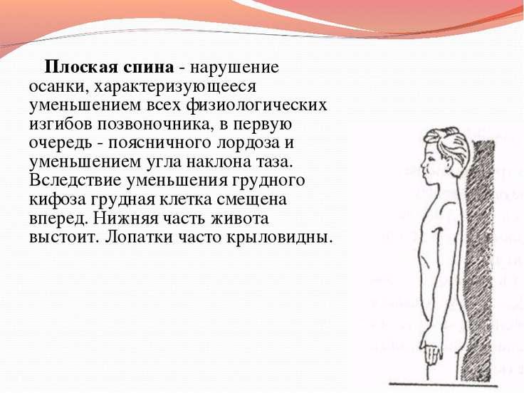 Плоская спина - нарушение осанки, характеризующееся уменьшением всех физиолог...