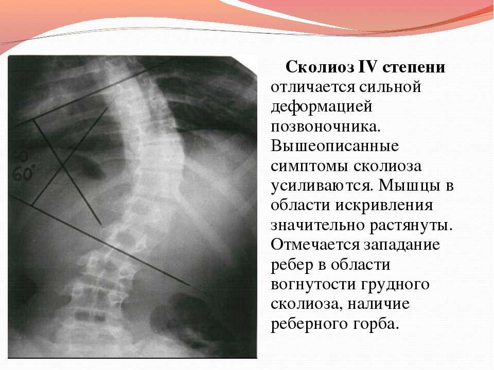 Сколиоз IV степени отличается сильной деформацией позвоночника. Вышеописанные...