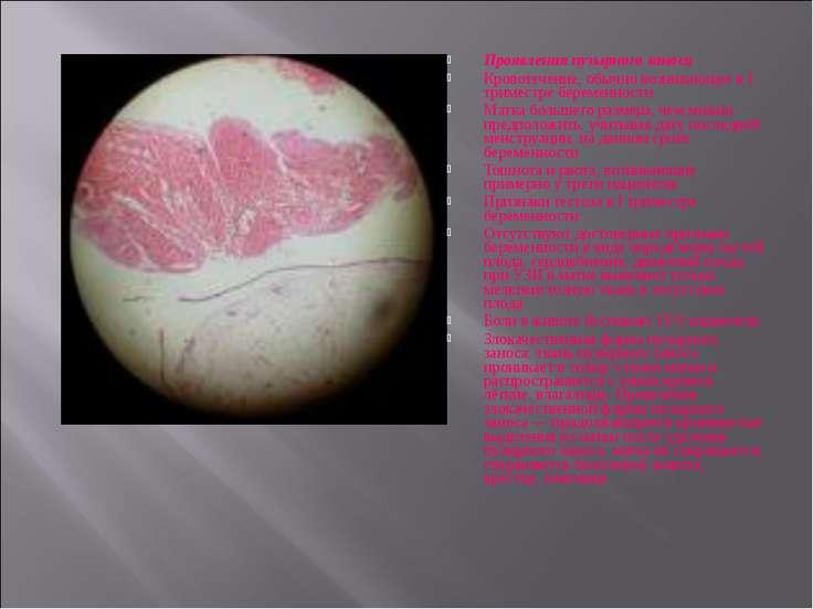 Проявления пузырного заноса Кровотечение, обычно возникающее в I триместре бе...